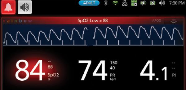 Màn hình hiển thị máy đo SpO2 - 49P